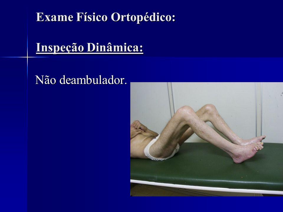 Exame Físico Ortopédico: Inspeção Dinâmica: