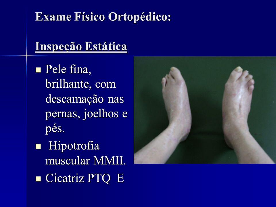 Exame Físico Ortopédico: Inspeção Estática