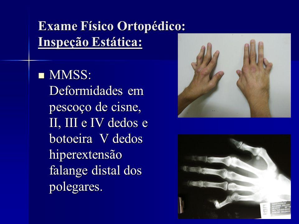 Exame Físico Ortopédico: Inspeção Estática: