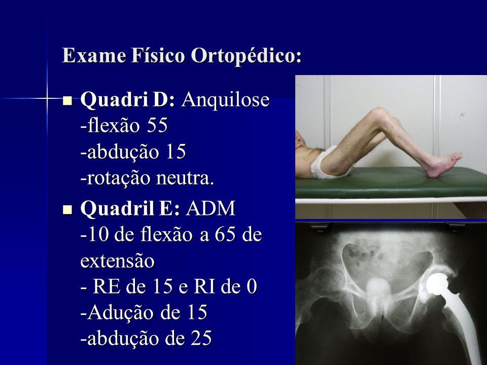 Exame Físico Ortopédico: