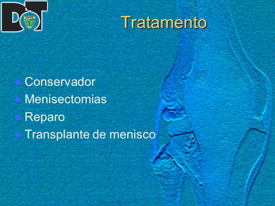 Tratamento Conservador Menisectomias Reparo Transplante de menisco