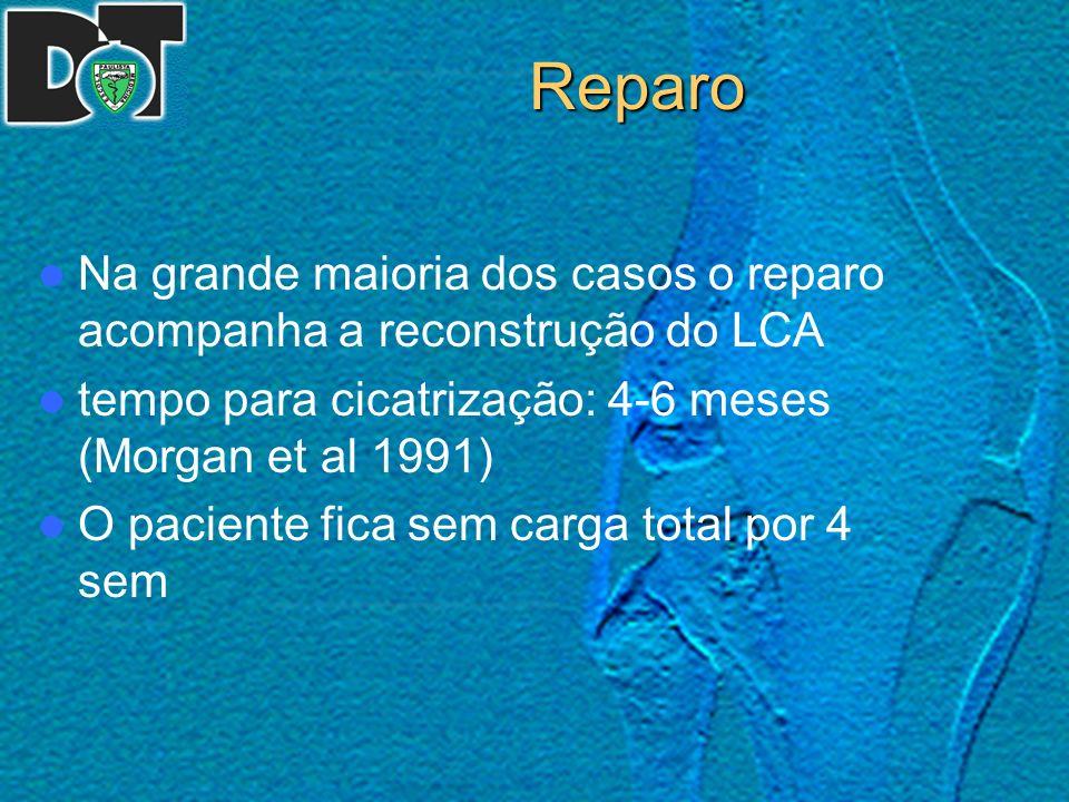 Reparo Na grande maioria dos casos o reparo acompanha a reconstrução do LCA. tempo para cicatrização: 4-6 meses (Morgan et al 1991)