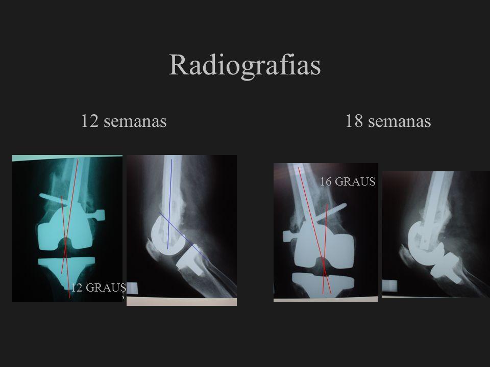 Radiografias 12 semanas 18 semanas 16 GRAUS 12 GRAUS 7 GRAUS