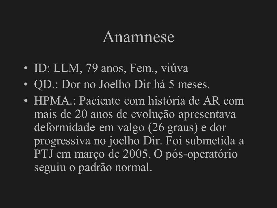 Anamnese ID: LLM, 79 anos, Fem., viúva