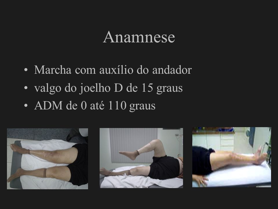 Anamnese Marcha com auxílio do andador valgo do joelho D de 15 graus