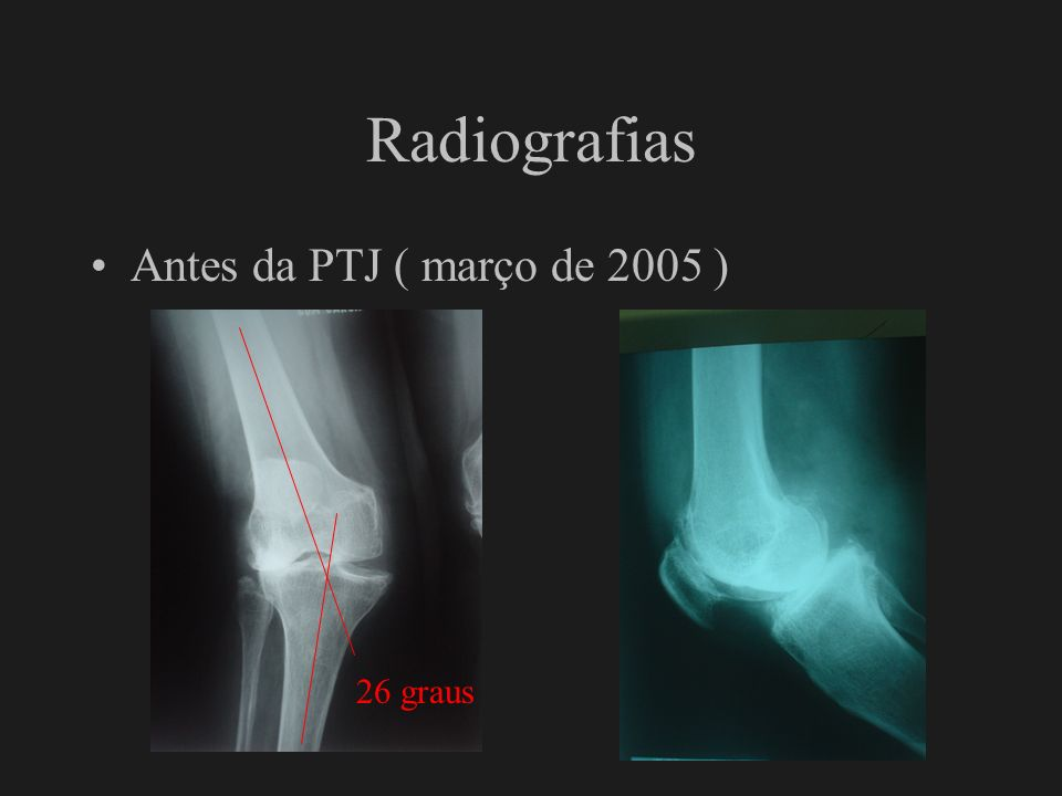 Radiografias Antes da PTJ ( março de 2005 ) 26 graus