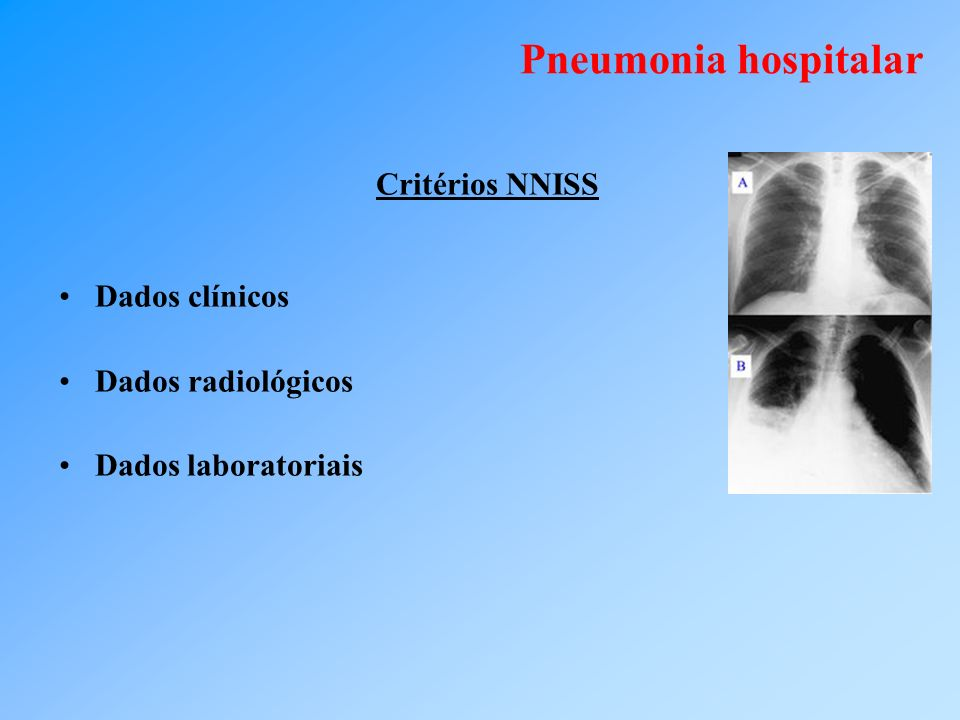 Pneumonia hospitalar Dados clínicos Dados radiológicos