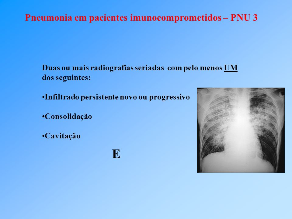 Pneumonia em pacientes imunocomprometidos – PNU 3