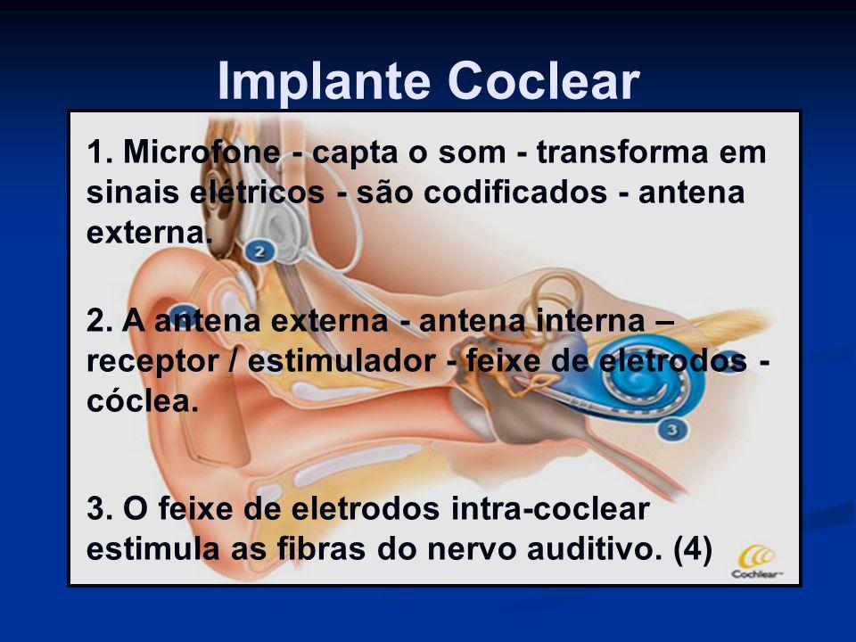 Implante Coclear 1. Microfone - capta o som - transforma em sinais elétricos - são codificados - antena externa.