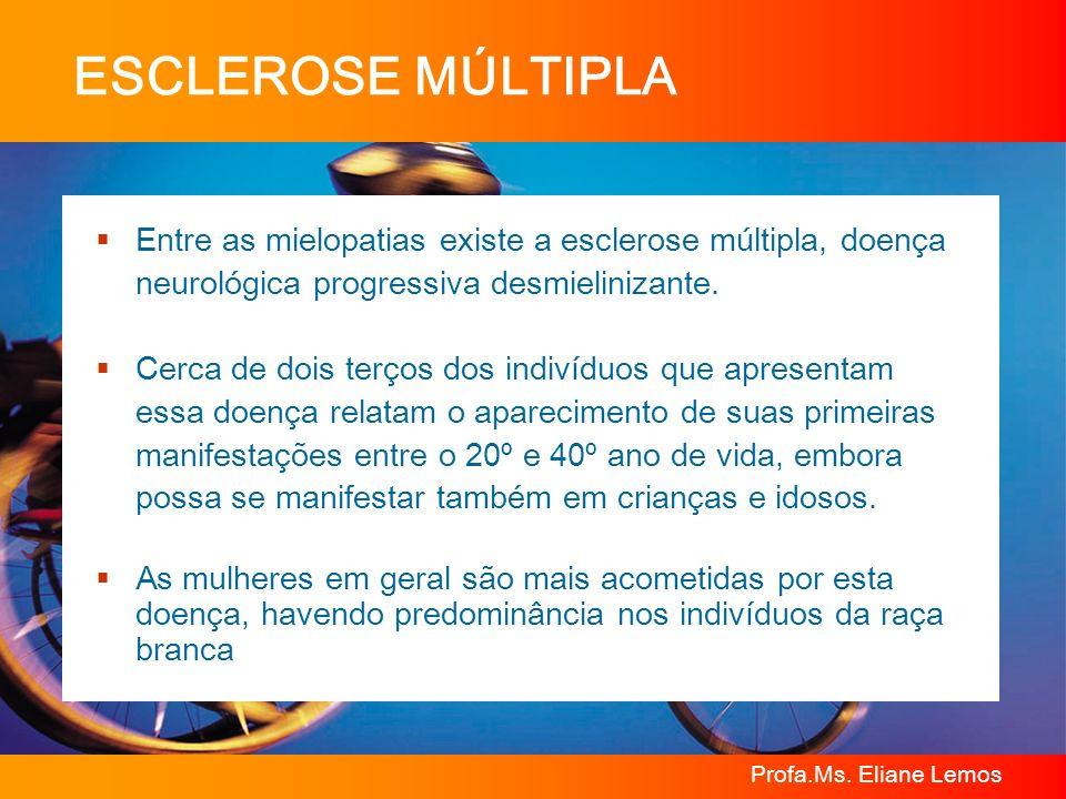 ESCLEROSE MÚLTIPLA Entre as mielopatias existe a esclerose múltipla, doença neurológica progressiva desmielinizante.