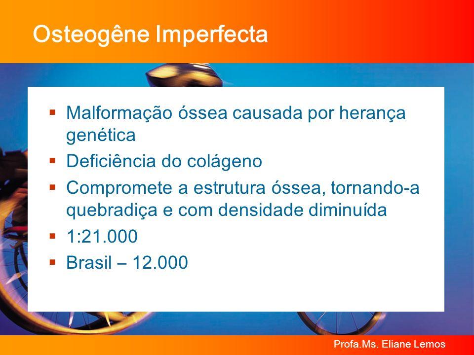 Osteogêne Imperfecta Malformação óssea causada por herança genética