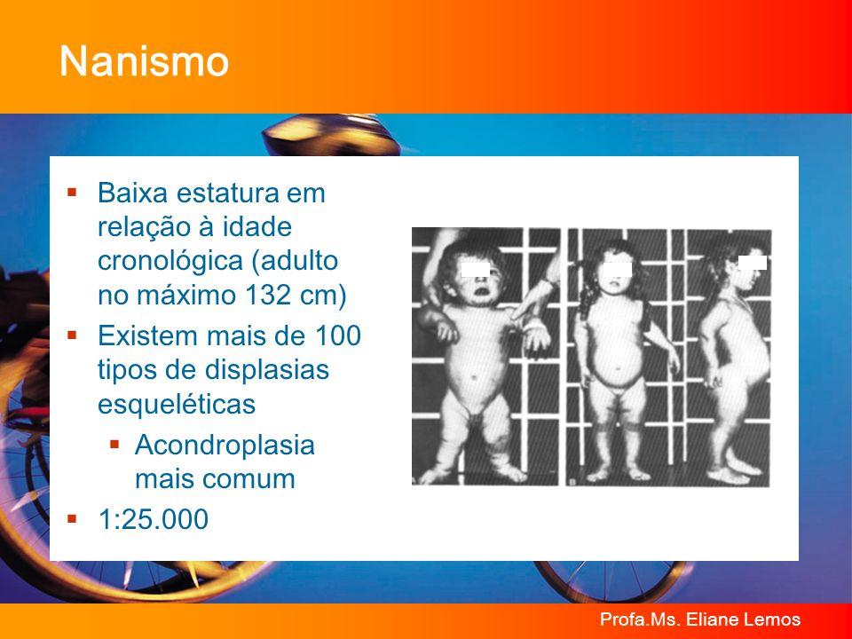 Nanismo Baixa estatura em relação à idade cronológica (adulto no máximo 132 cm) Existem mais de 100 tipos de displasias esqueléticas.