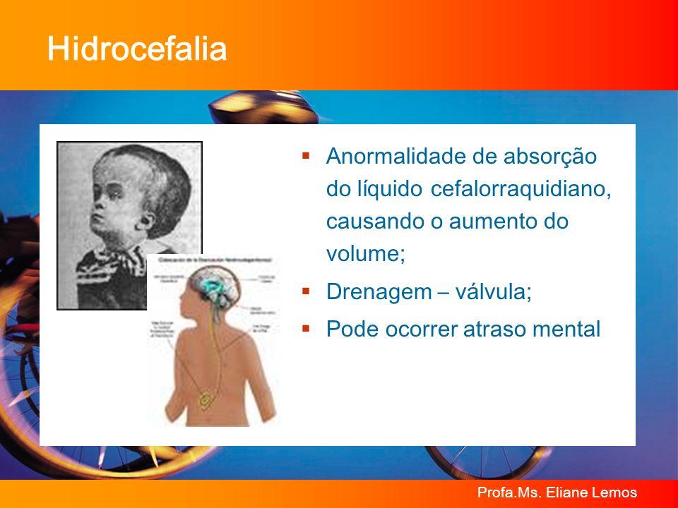 HidrocefaliaAnormalidade de absorção do líquido cefalorraquidiano, causando o aumento do volume; Drenagem – válvula;