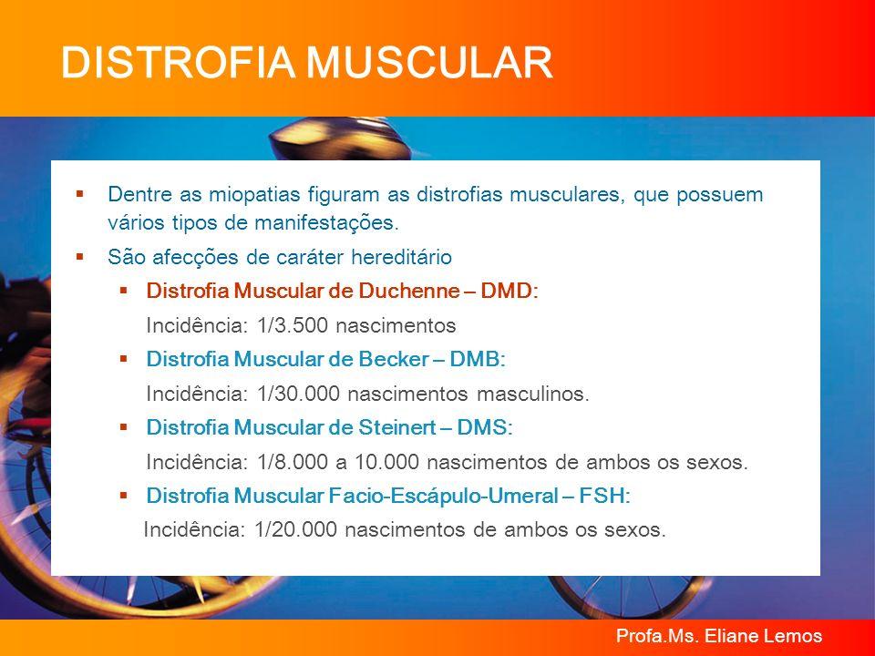 DISTROFIA MUSCULARDentre as miopatias figuram as distrofias musculares, que possuem vários tipos de manifestações.