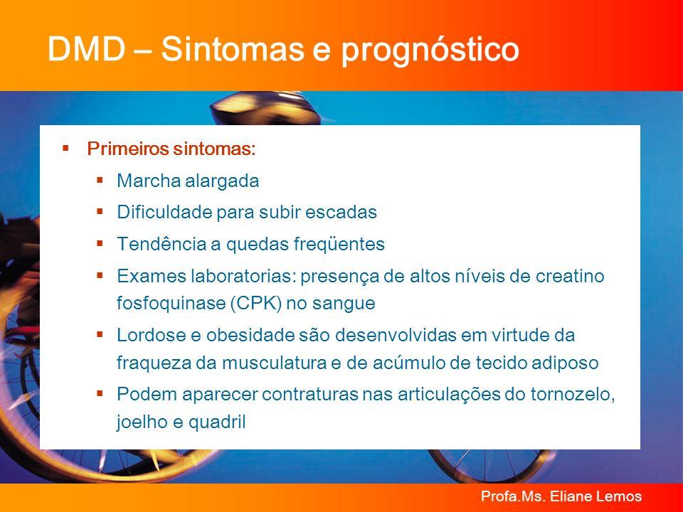 DMD – Sintomas e prognóstico