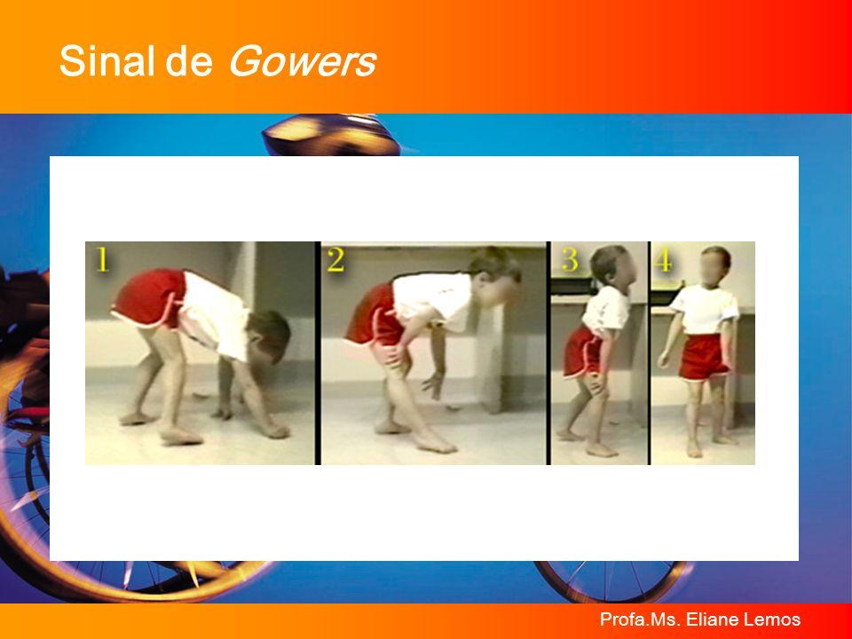 Sinal de Gowers Profa.Ms. Eliane Lemos
