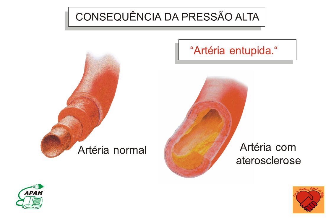 Artéria entupida. Artéria com Artéria normal aterosclerose