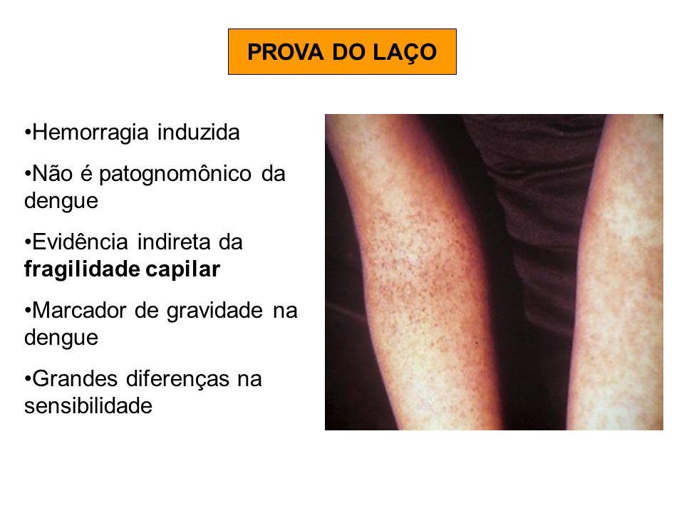 PROVA DO LAÇO Hemorragia induzida. Não é patognomônico da dengue. Evidência indireta da fragilidade capilar.