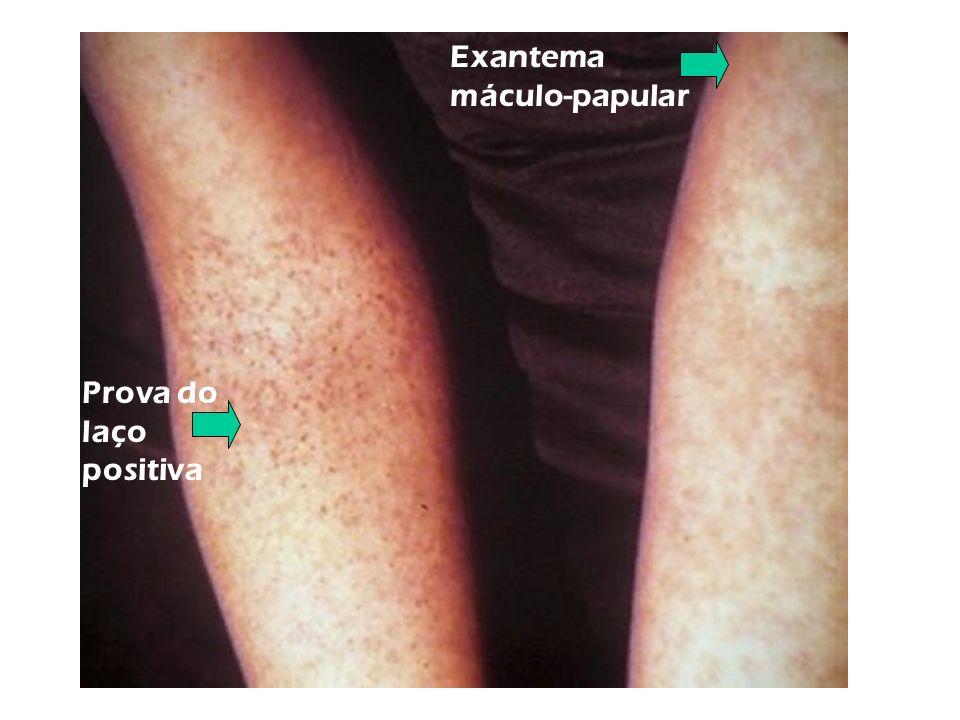 Prova do laço positiva Exantema máculo-papular