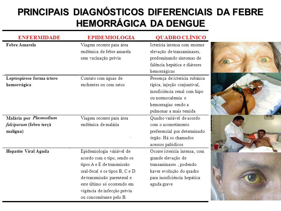 PRINCIPAIS DIAGNÓSTICOS DIFERENCIAIS DA FEBRE HEMORRÁGICA DA DENGUE