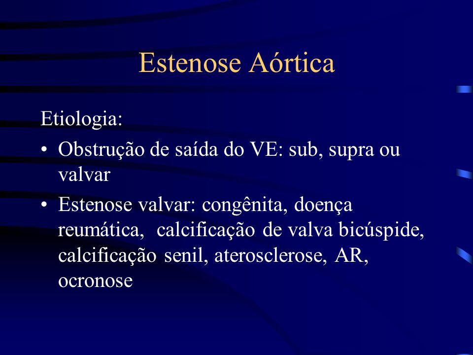 Estenose Aórtica Etiologia: