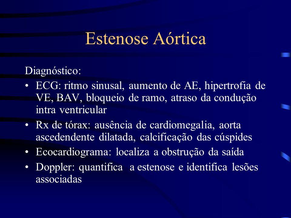 Estenose Aórtica Diagnóstico: