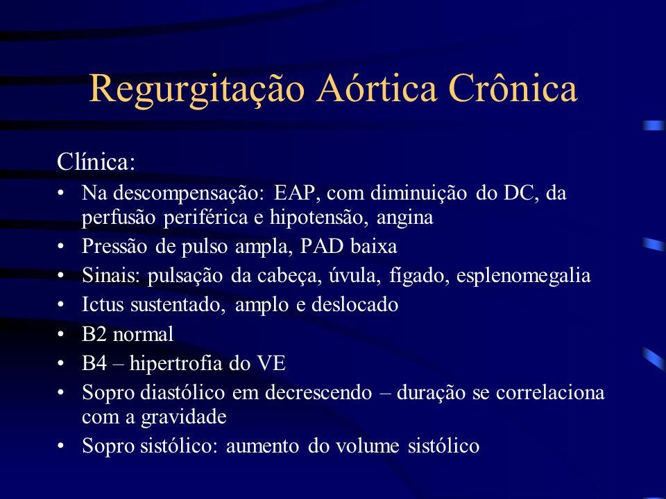 Regurgitação Aórtica Crônica