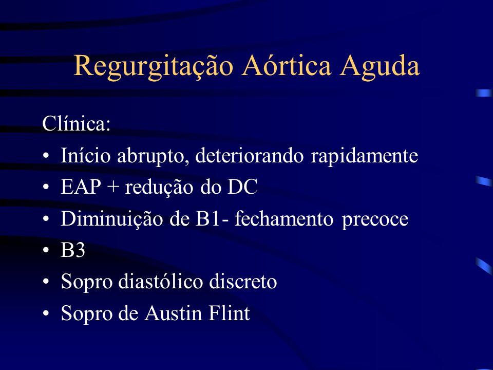 Regurgitação Aórtica Aguda