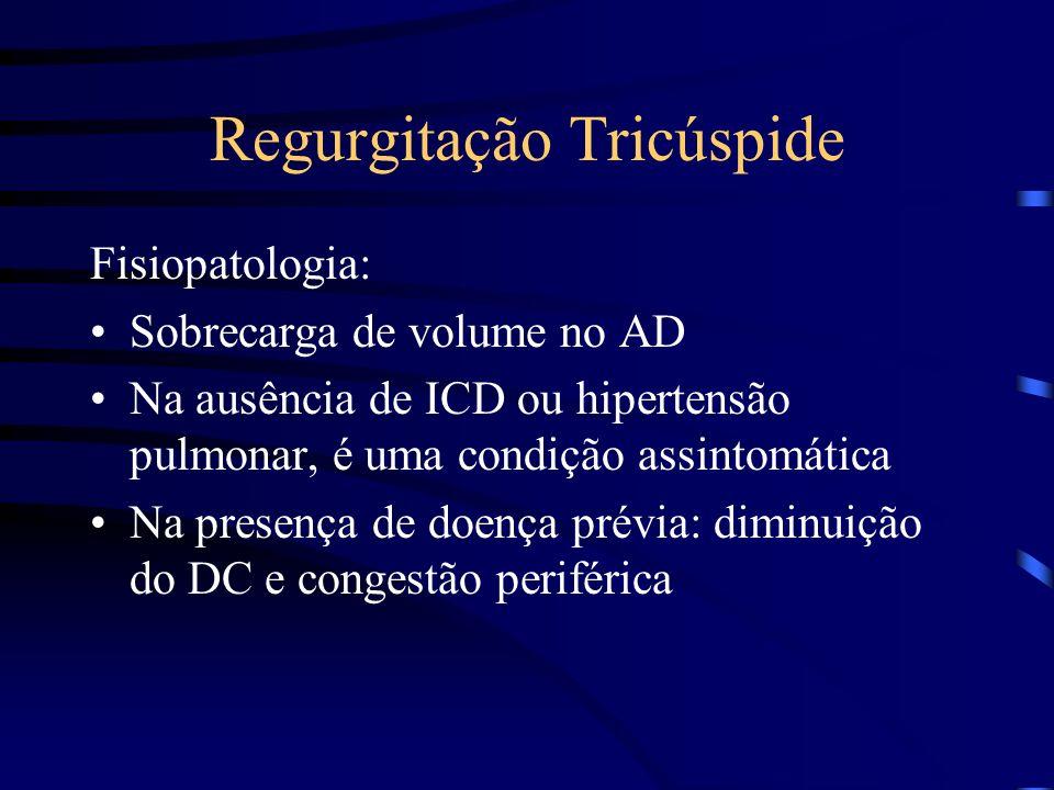 Regurgitação Tricúspide