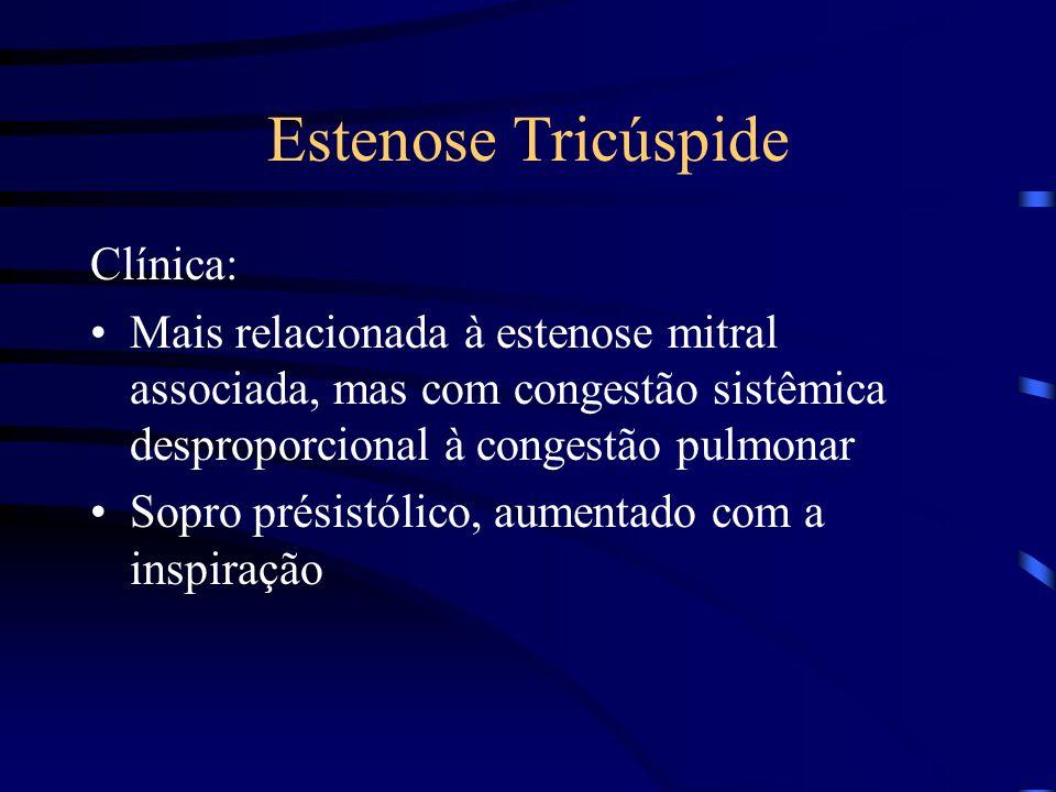 Estenose Tricúspide Clínica: