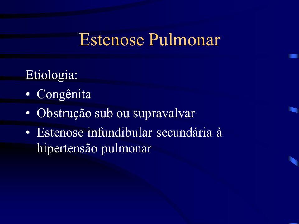 Estenose Pulmonar Etiologia: Congênita Obstrução sub ou supravalvar