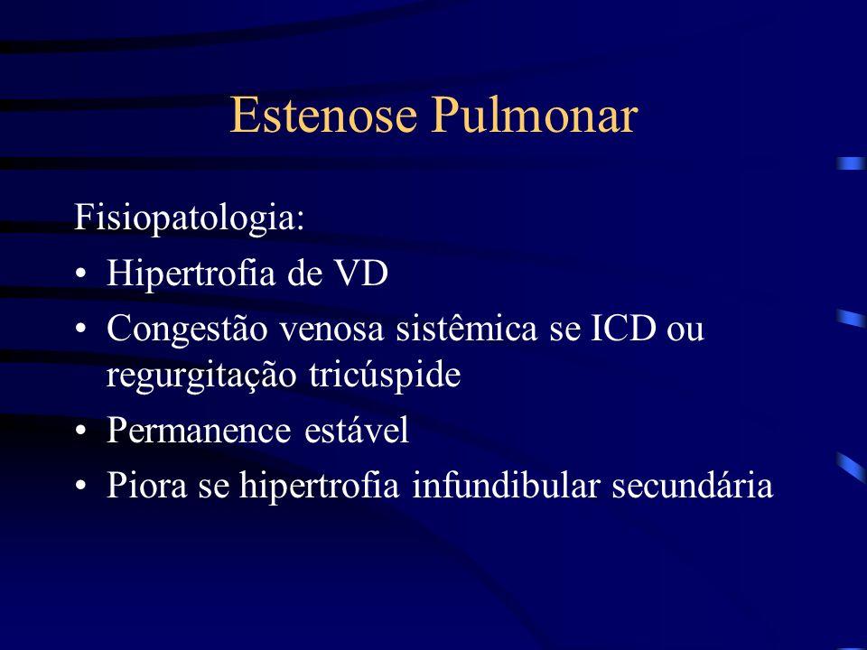 Estenose Pulmonar Fisiopatologia: Hipertrofia de VD
