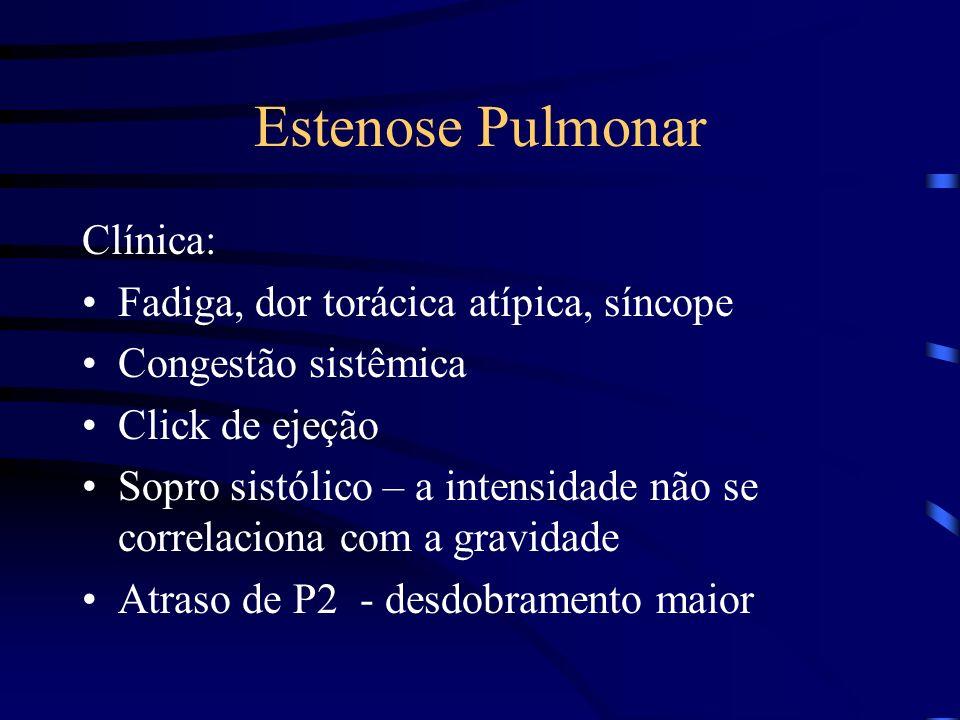 Estenose Pulmonar Clínica: Fadiga, dor torácica atípica, síncope