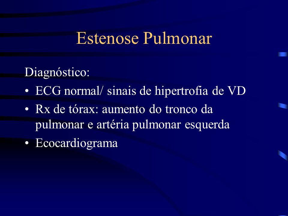Estenose Pulmonar Diagnóstico: ECG normal/ sinais de hipertrofia de VD