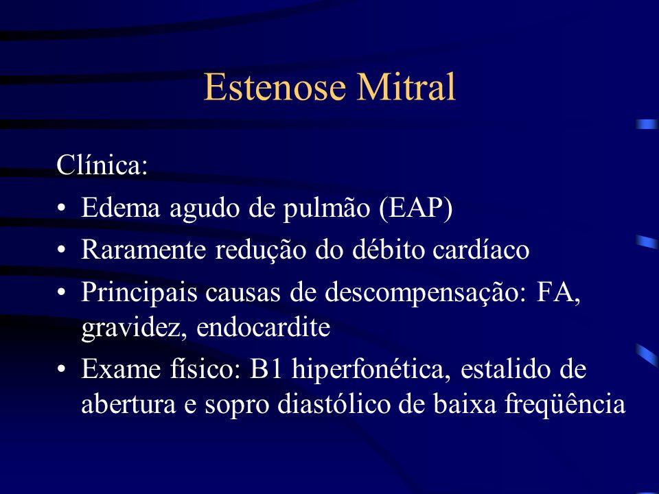 Estenose Mitral Clínica: Edema agudo de pulmão (EAP)
