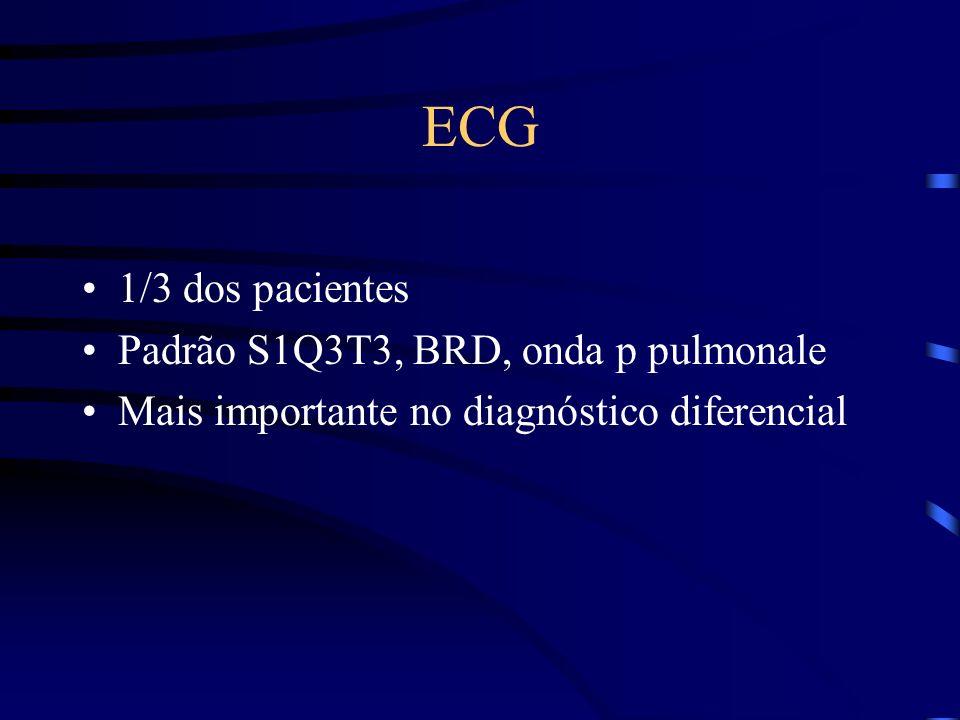 ECG 1/3 dos pacientes Padrão S1Q3T3, BRD, onda p pulmonale