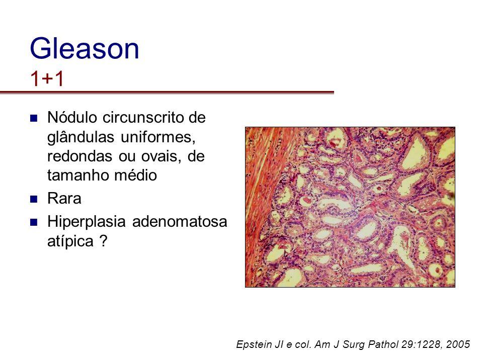 Gleason 1+1 Nódulo circunscrito de glândulas uniformes, redondas ou ovais, de tamanho médio. Rara.