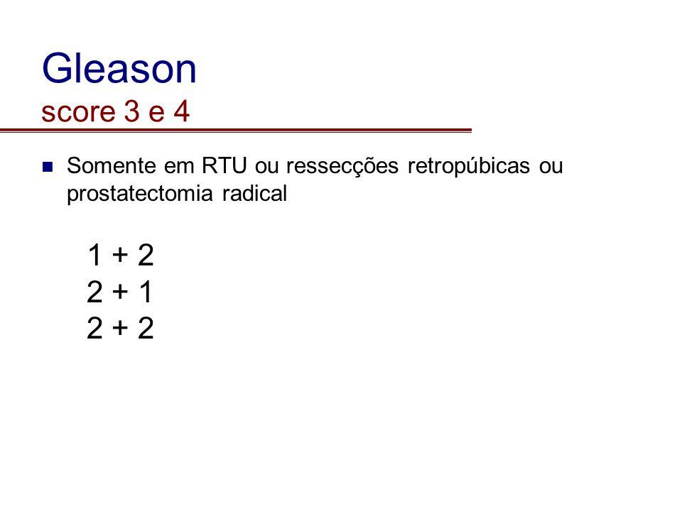 Gleason score 3 e 4 Somente em RTU ou ressecções retropúbicas ou prostatectomia radical. 1 + 2. 2 + 1.