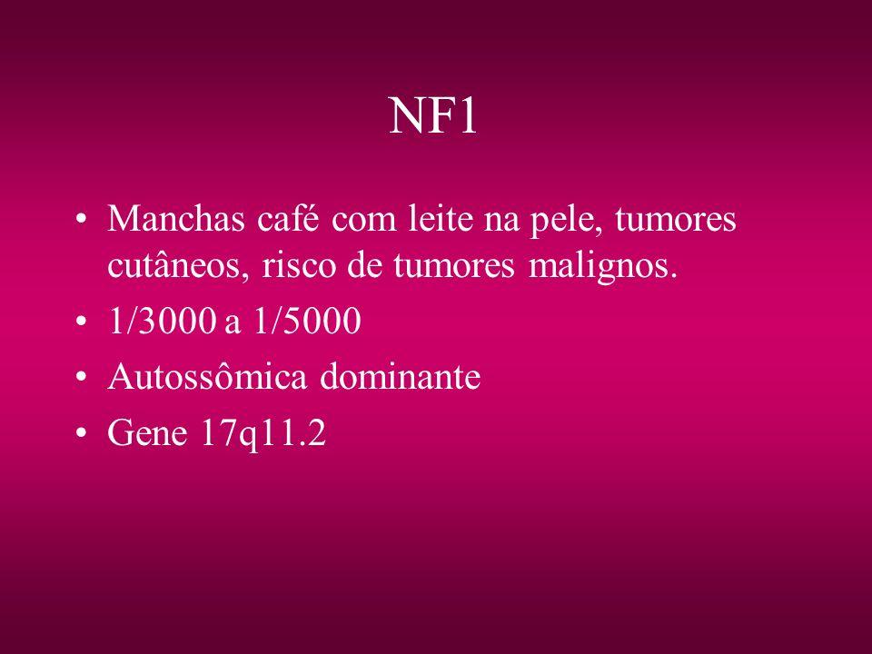 NF1 Manchas café com leite na pele, tumores cutâneos, risco de tumores malignos. 1/3000 a 1/5000. Autossômica dominante.