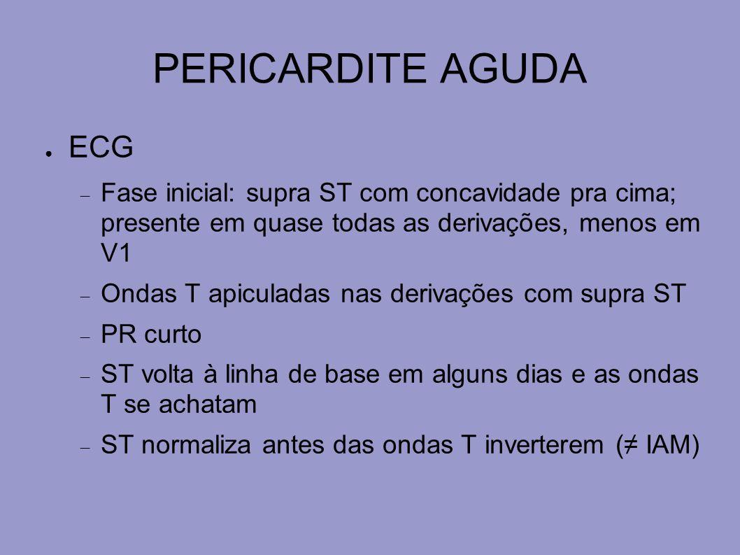 PERICARDITE AGUDA ECG. Fase inicial: supra ST com concavidade pra cima; presente em quase todas as derivações, menos em V1.