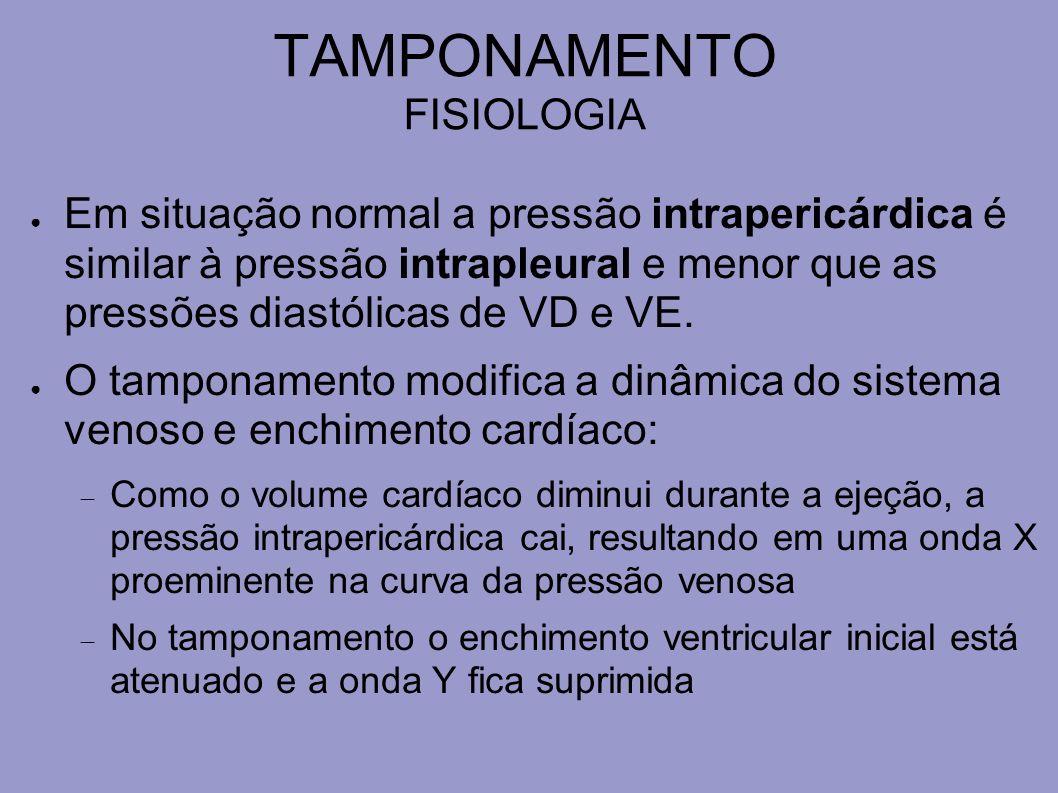 TAMPONAMENTO FISIOLOGIA