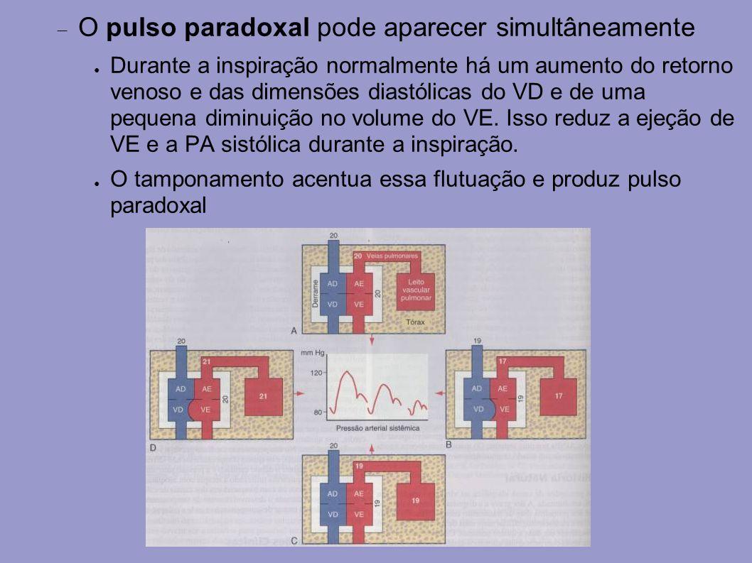 O pulso paradoxal pode aparecer simultâneamente