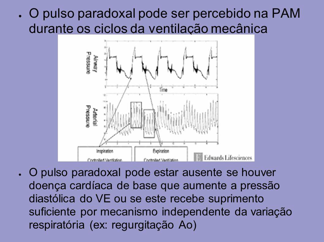 O pulso paradoxal pode ser percebido na PAM durante os ciclos da ventilação mecânica