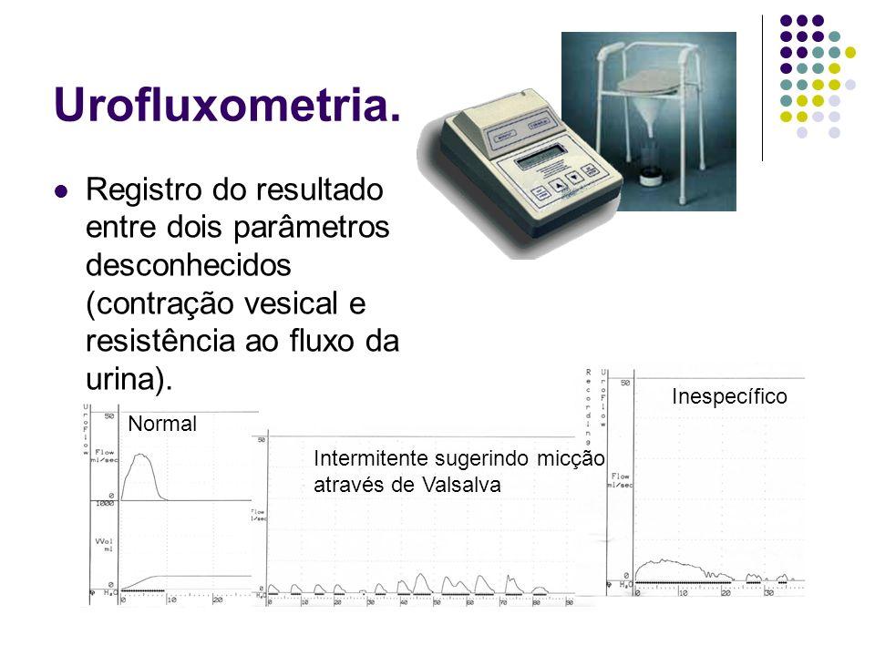 Urofluxometria. Registro do resultado entre dois parâmetros desconhecidos (contração vesical e resistência ao fluxo da urina).