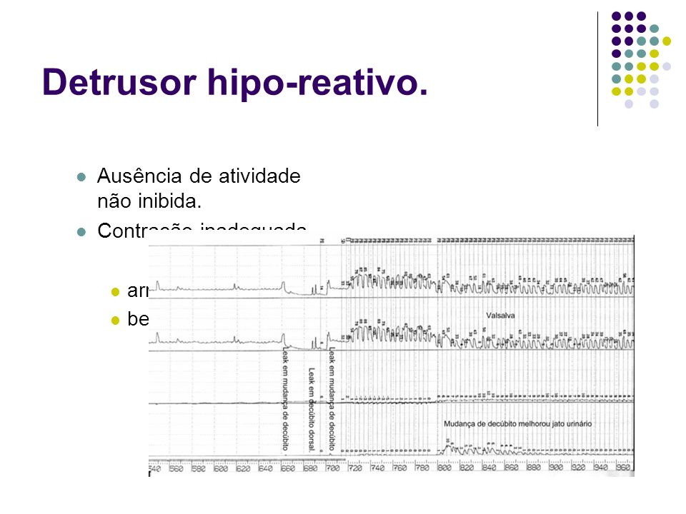 Detrusor hipo-reativo.