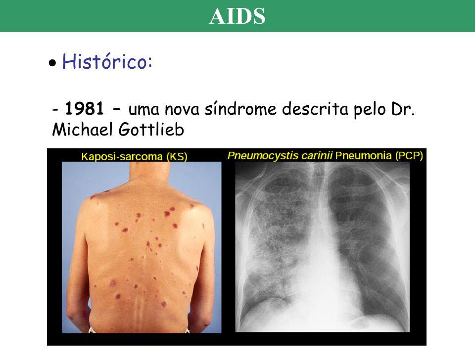 AIDS Histórico: - 1981 – uma nova síndrome descrita pelo Dr. Michael Gottlieb