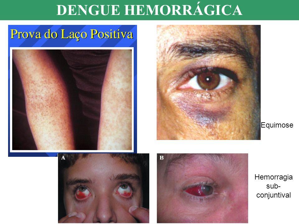 Hemorragia sub- conjuntival