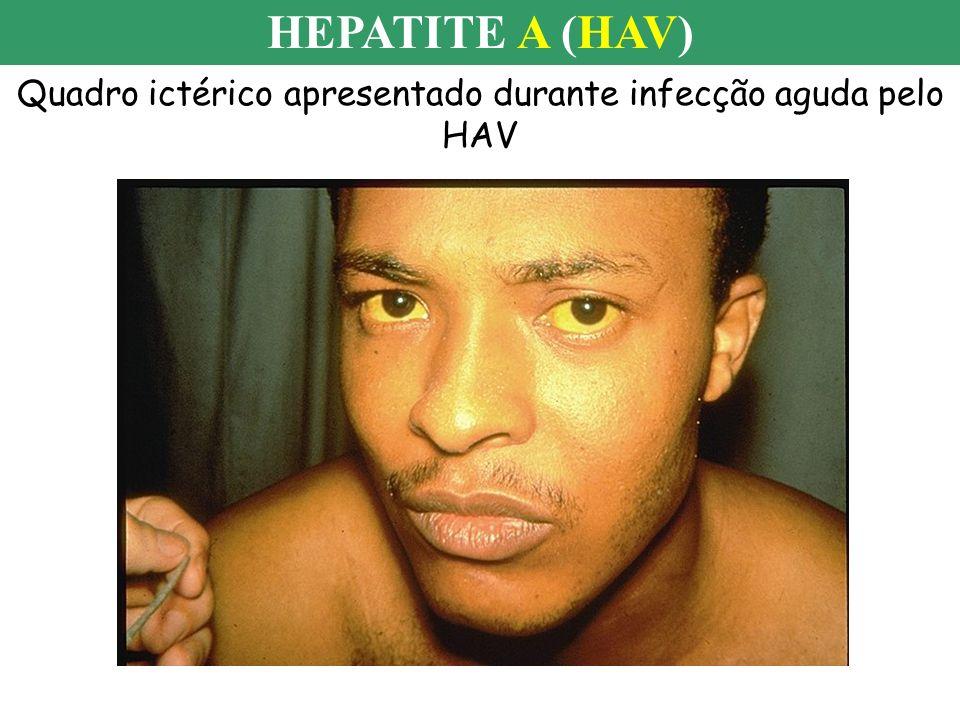 Quadro ictérico apresentado durante infecção aguda pelo HAV