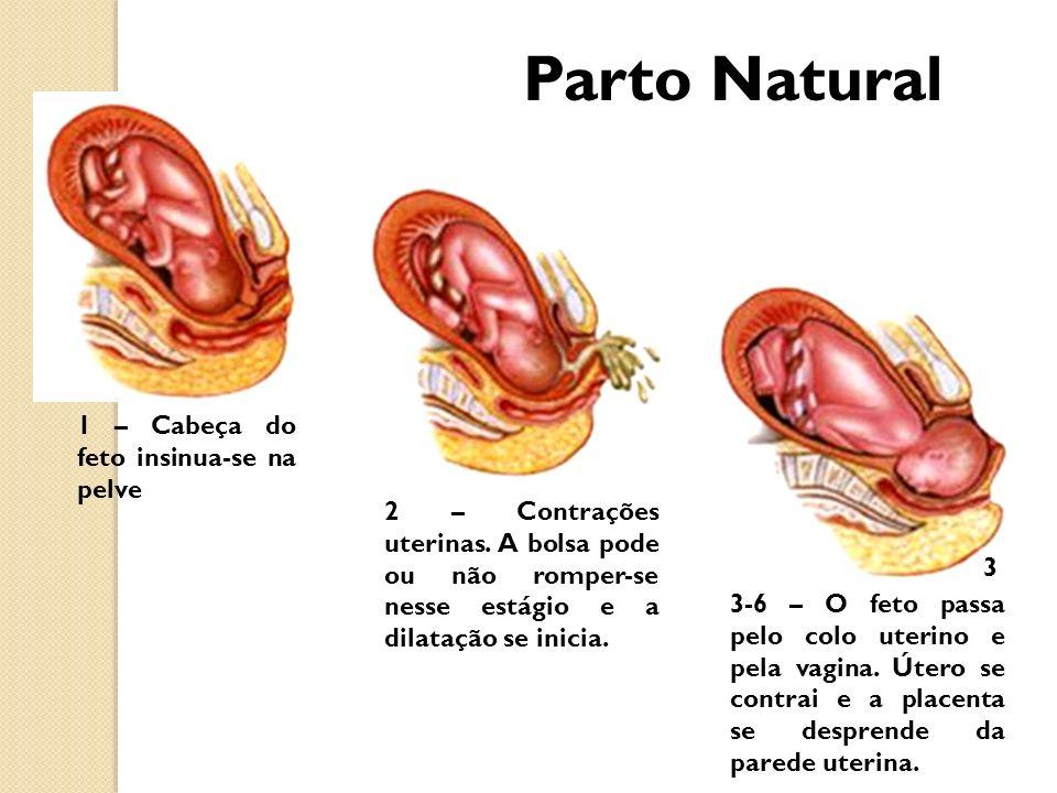 Parto Natural 1 – Cabeça do feto insinua-se na pelve
