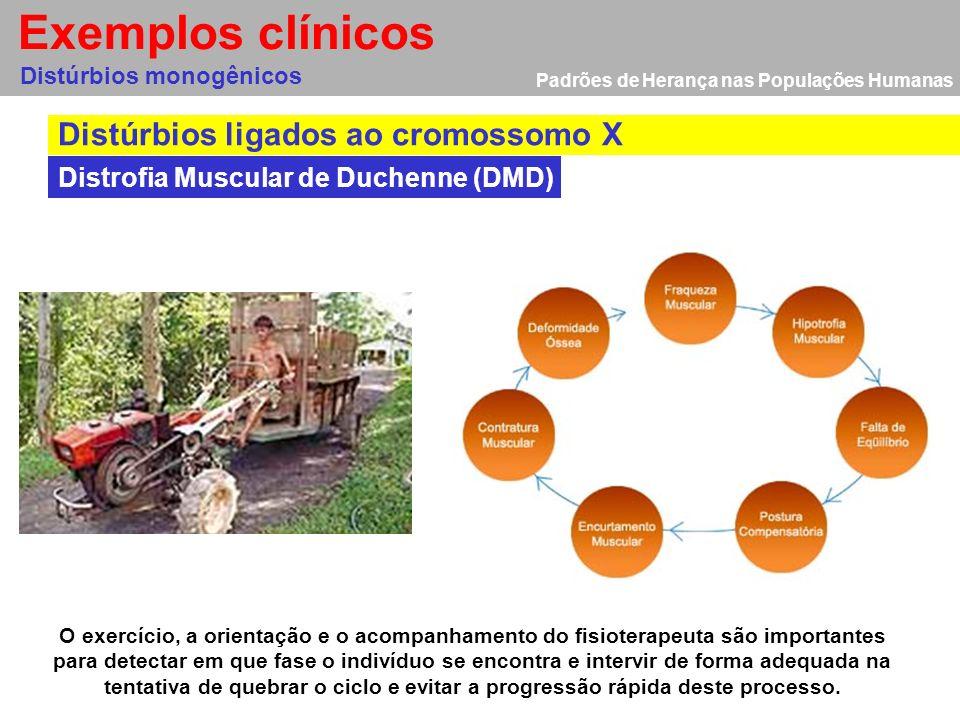 Exemplos clínicos Distúrbios ligados ao cromossomo X